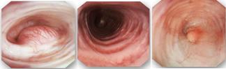 endoscopy_3_pics_-2.png