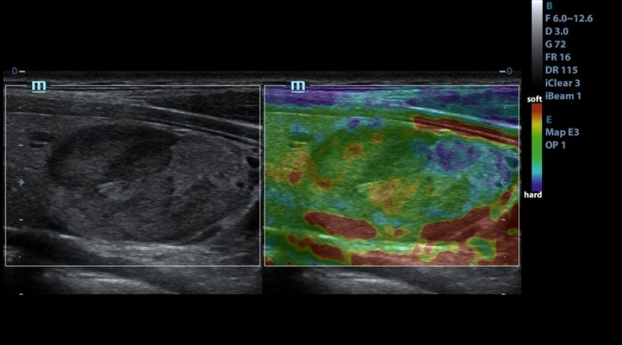 Breast Mass Elastography