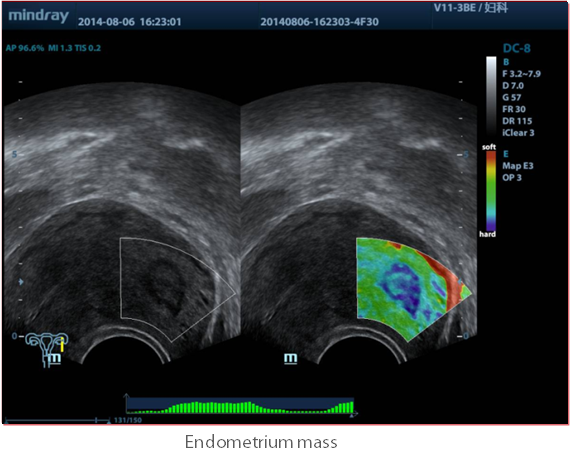 Natural-Touch-Elastography-TransVaginal Mindray-DC-8-Exp